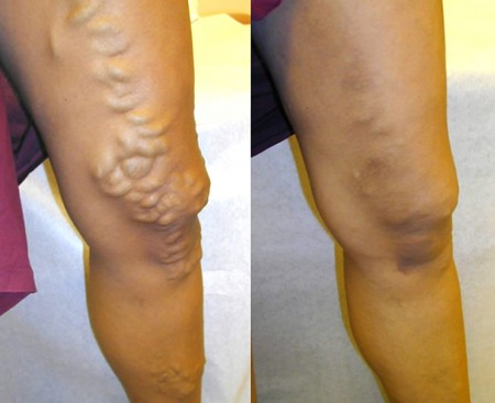 After Vein Treatments